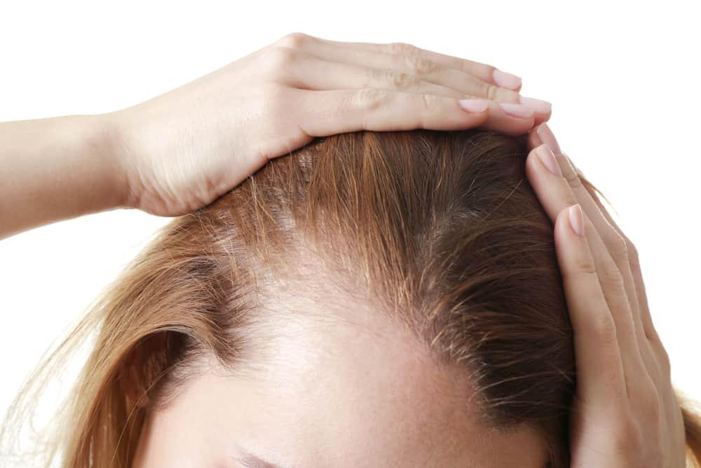 utrata włosów u kobiety