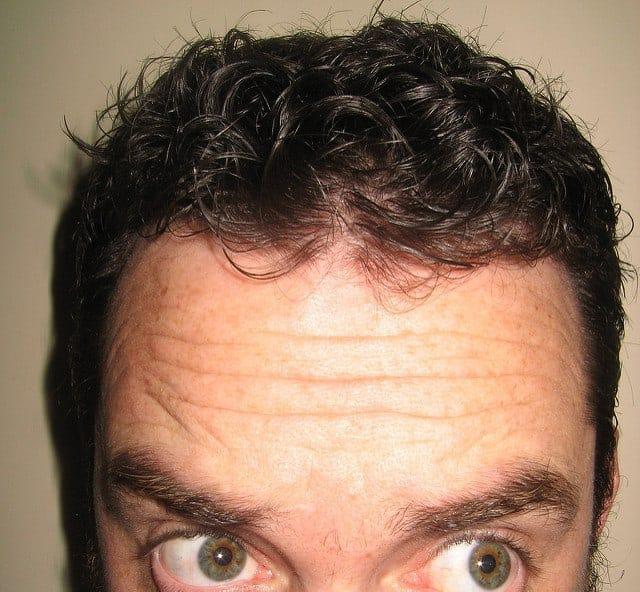 Choroby powodujące przyspieszone łysienie