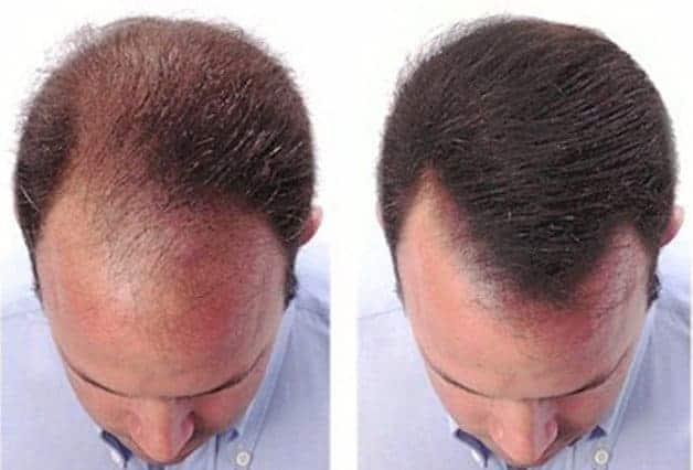 Mezoterapia włosów opinie, efekty, cena zabiegu