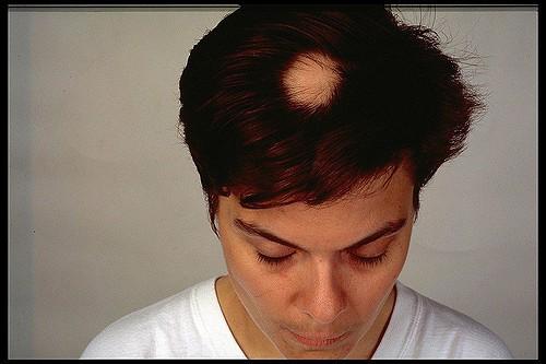 Łysienie plackowate – przyczyny, objawy i leczenie