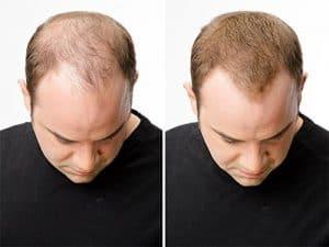 efekt przed i po zastosowaniu follixinu