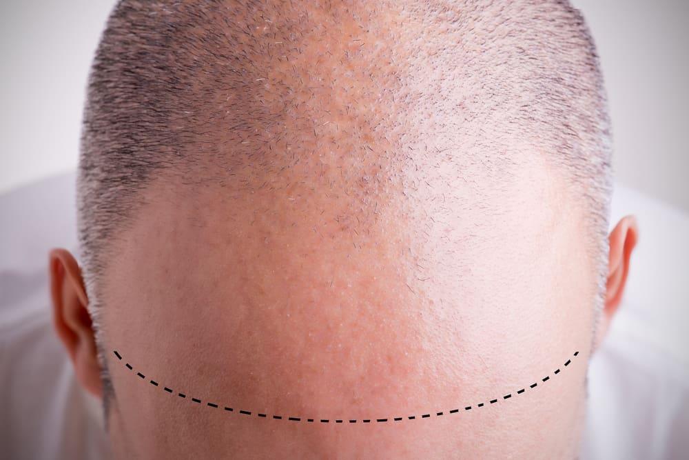 męskie łysienie androgenowe