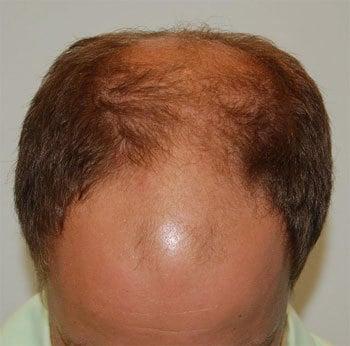 Dobre sposoby na powstrzymanie łysienia – moja opinia.