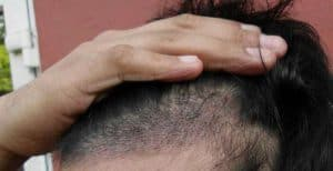 powiększająca się łysina
