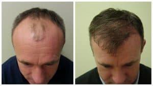 mężczyzna z włosami i łysy
