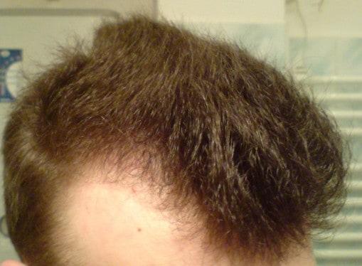 Choroby skóry, których objawem jest wypadanie włosów.
