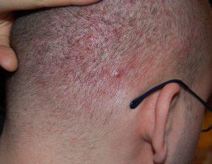 trądzik skóry głowy