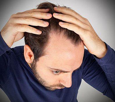 Peptydowa terapia włosów opinia o jej skuteczności na łysienie.