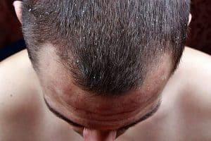 włosy z łupieżem