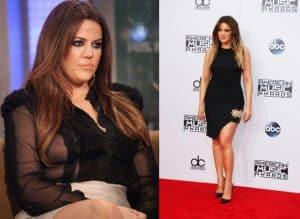 kobieta przed i po odchudzaniu