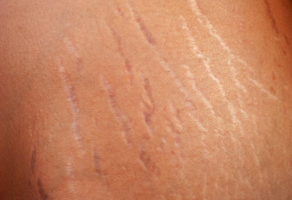 skóra z rozstępami
