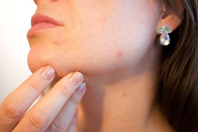 Domowe sposoby na trądzik – jak wygrać z nim bez pomocy antybiotyków