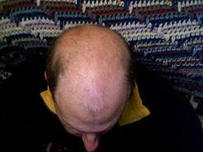 łysy mężczyzna
