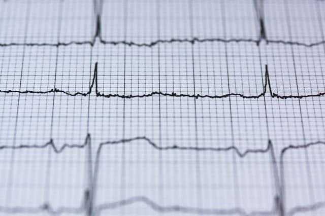 wydruk elektrokardiogramu