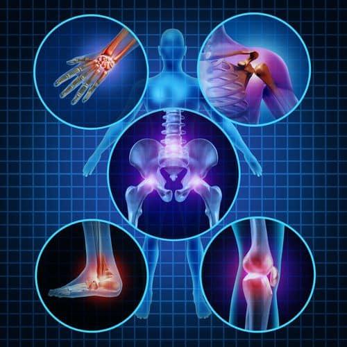 schemat bolących stawów